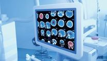 AI医療診断 医療現場に新時代到来